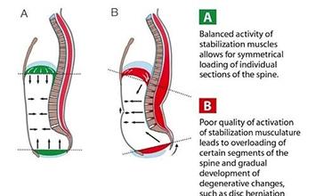 image of diaphragm